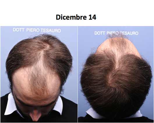 intervento autotrapianto capelli fue iene