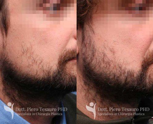 trapianto barba 1 post 1