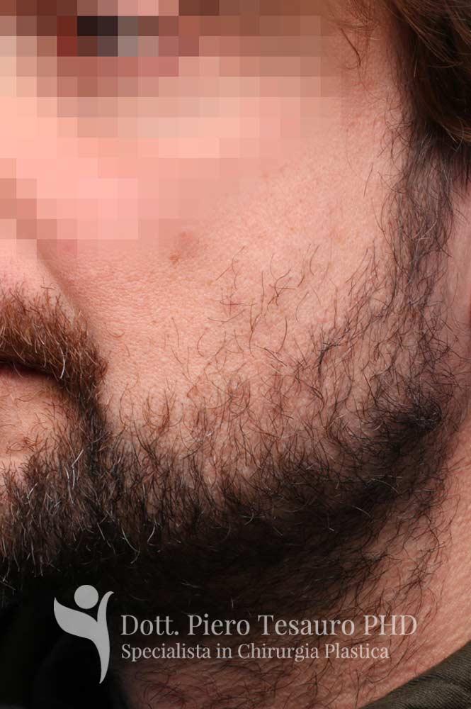 trapianto barba 1 pre 1