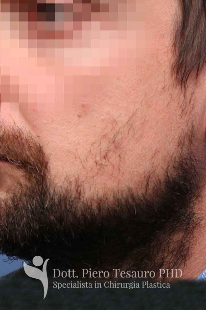 trapianto barba 1 pre 2