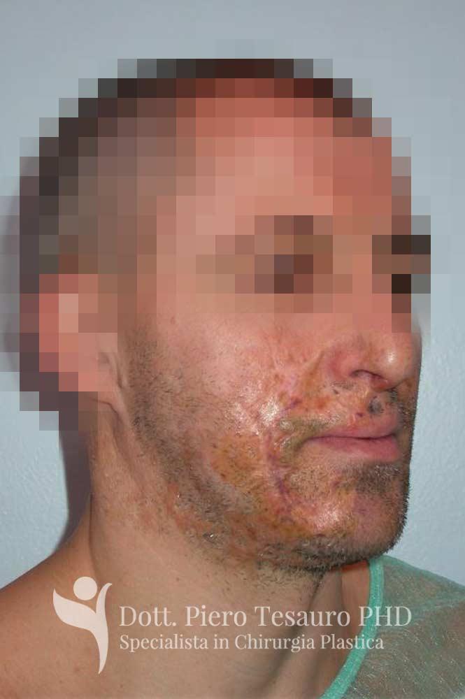 autotrapianto capelli aree cicatriziali 1