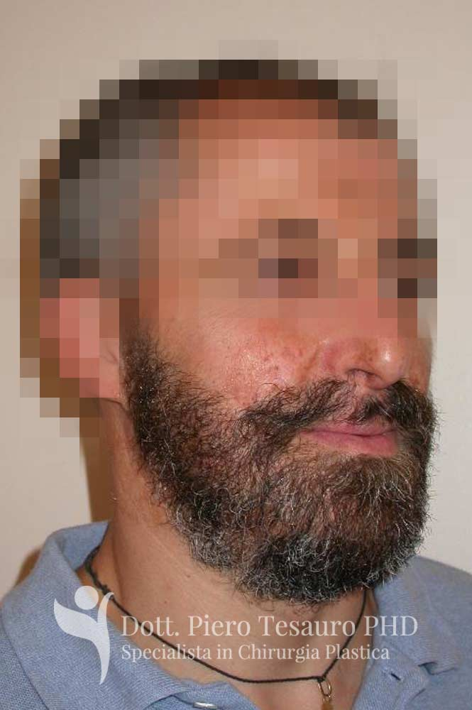 autotrapianto capelli aree cicatriziali 2