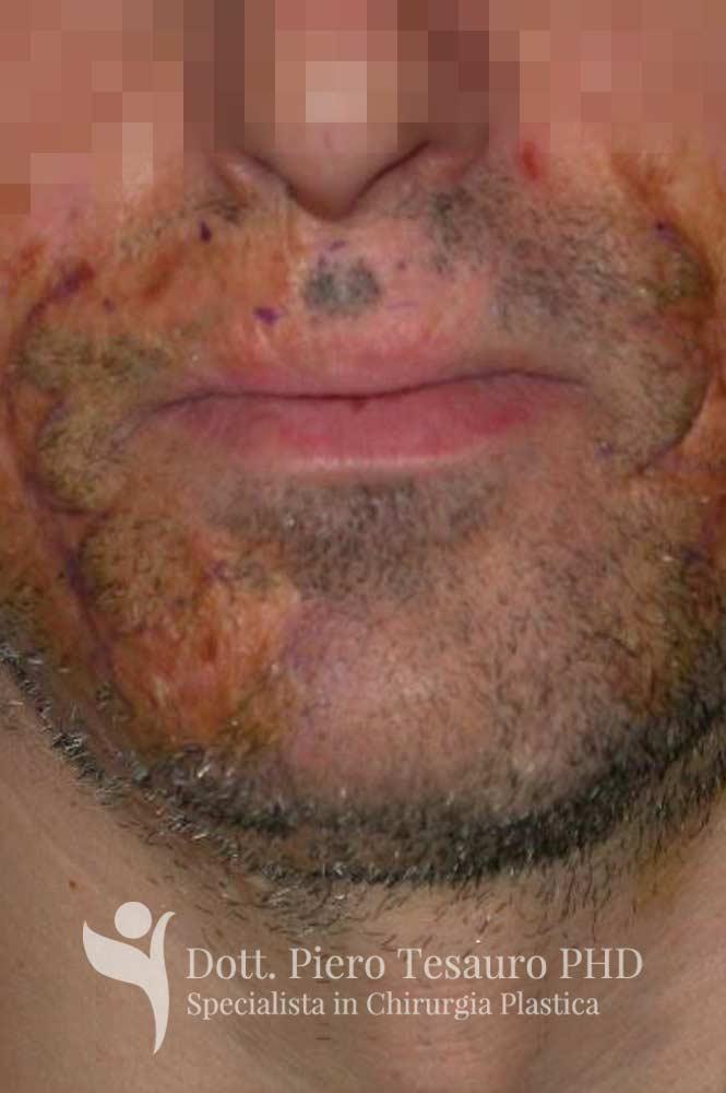 autotrapianto capelli aree cicatriziali 3