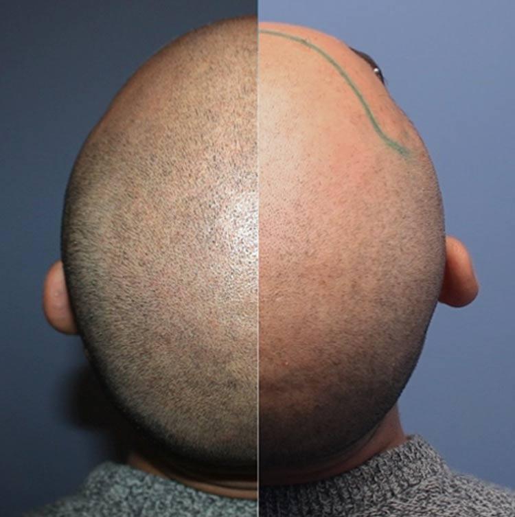 dermopigmentazione trapianto capelli