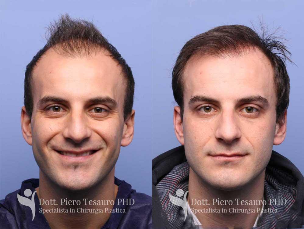 infoltimento diffuso mid scalp