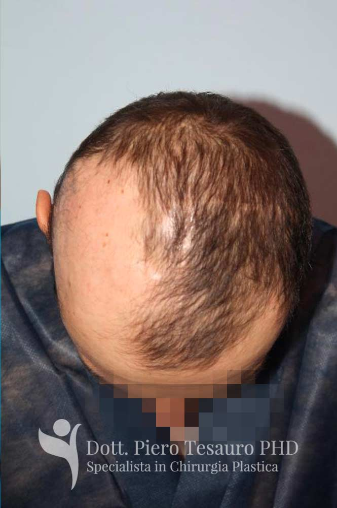 mascheramento area alopecica cicatriziale 2