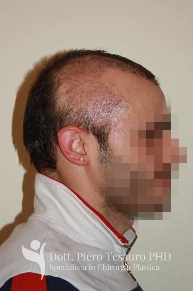 mascheramento area alopecica cicatriziale 3