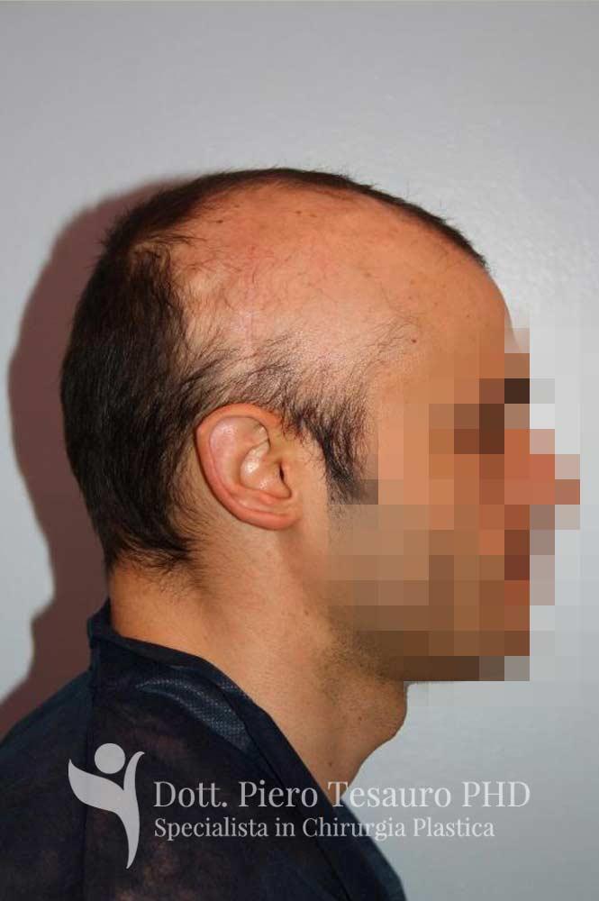 mascheramento area alopecica cicatriziale 4