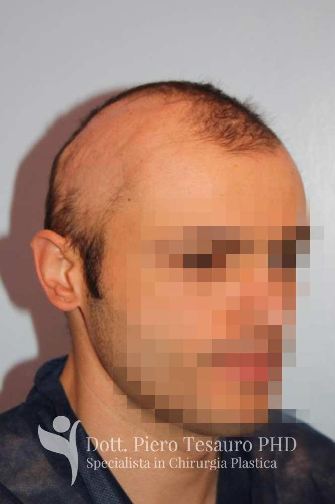 mascheramento area alopecica cicatriziale 6