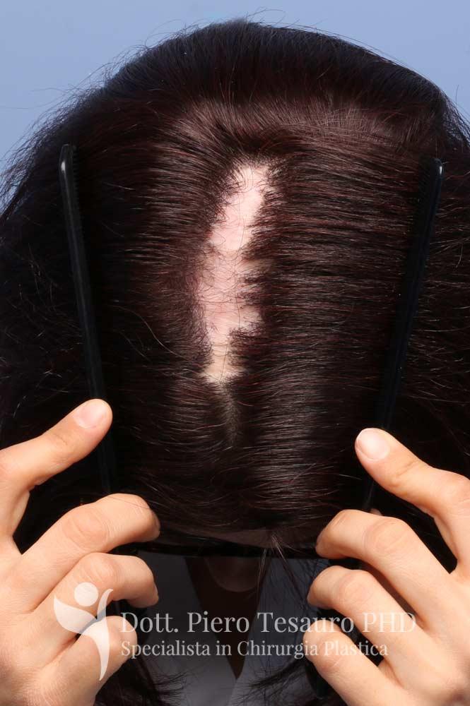 mascheramento esito cicatriziale 1