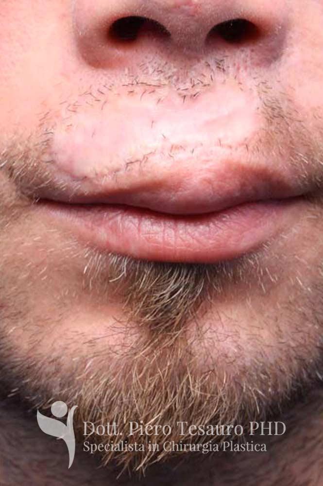 ricostruzione baffi area cicatriziale 3