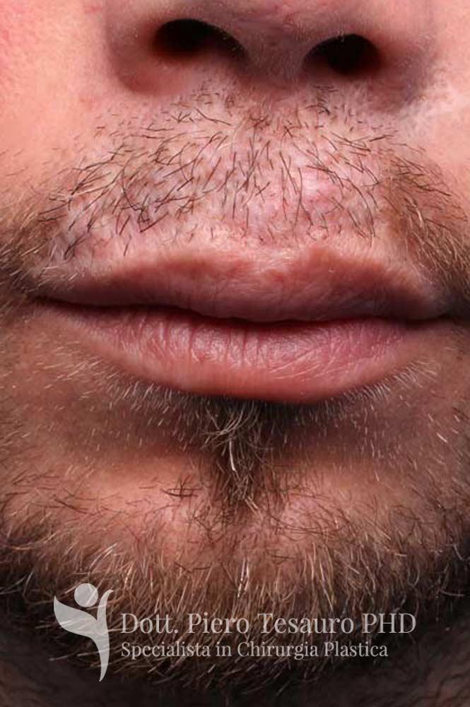 ricostruzione baffi area cicatriziale 4