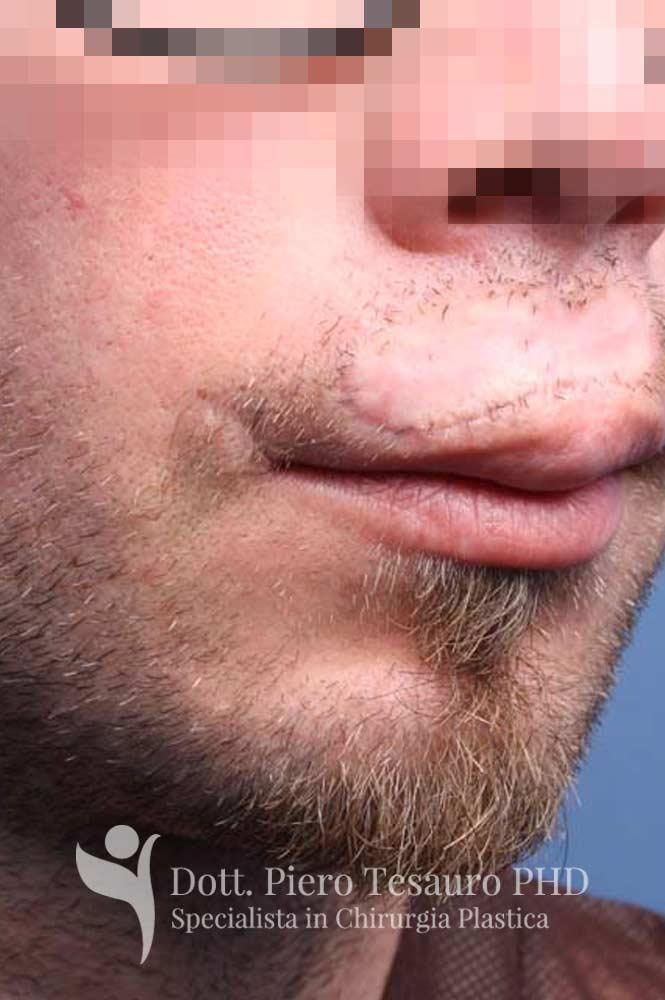 ricostruzione baffi area cicatriziale