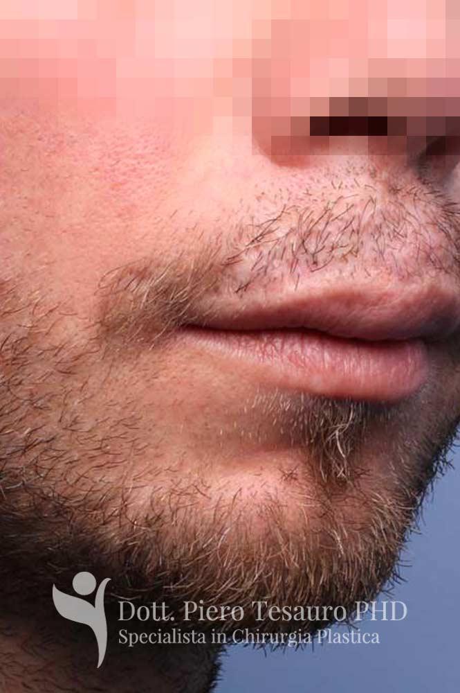 ricostruzione baffi area cicatriziale6