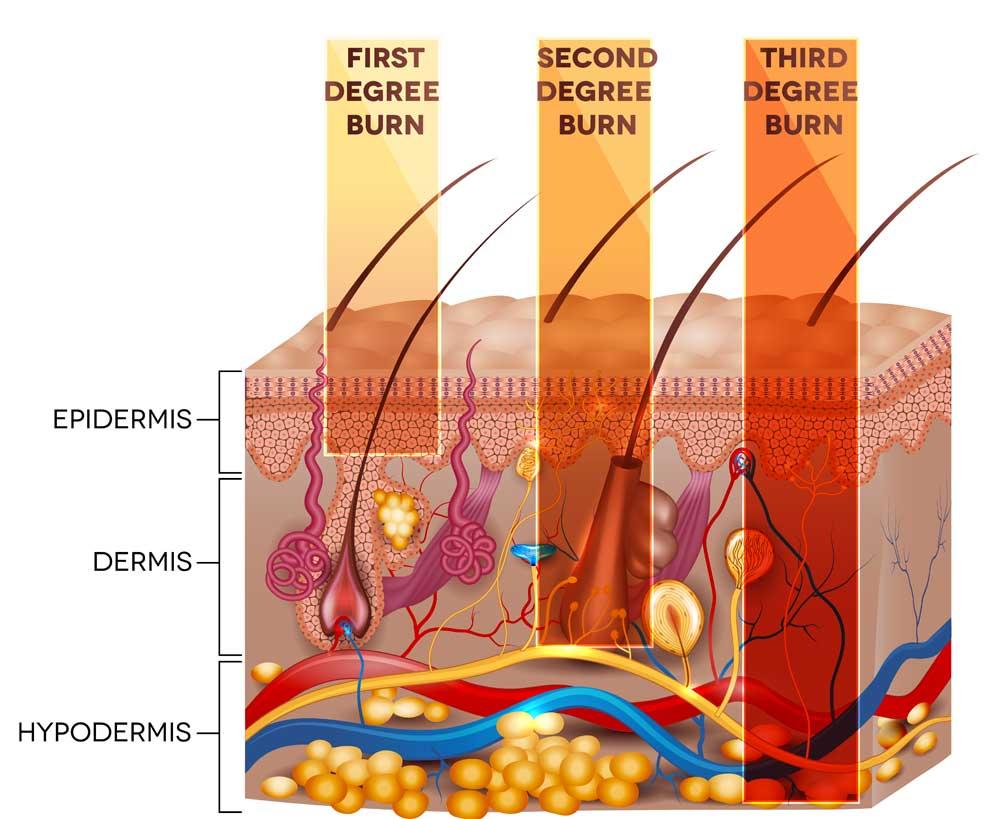 Alopecia da ustione