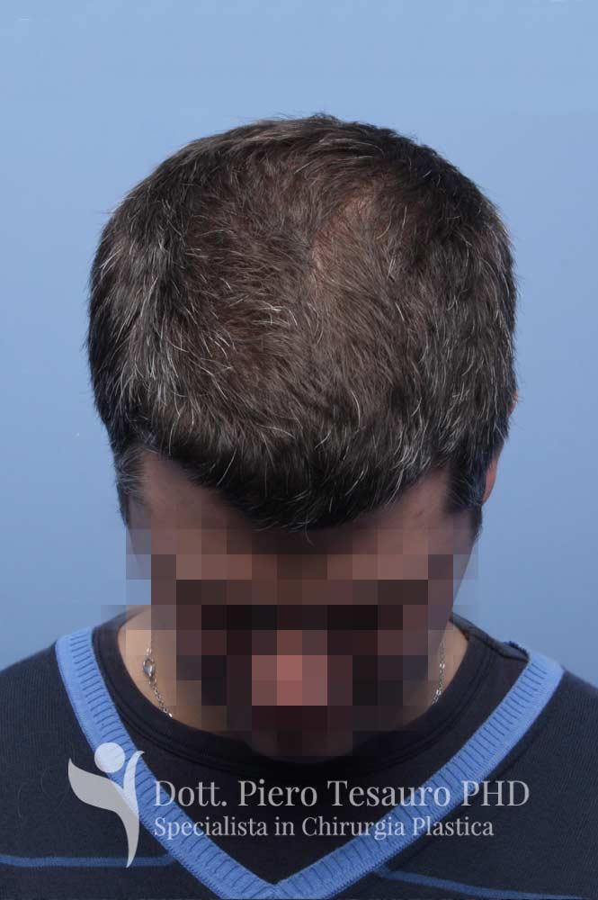 capelli terapia 3