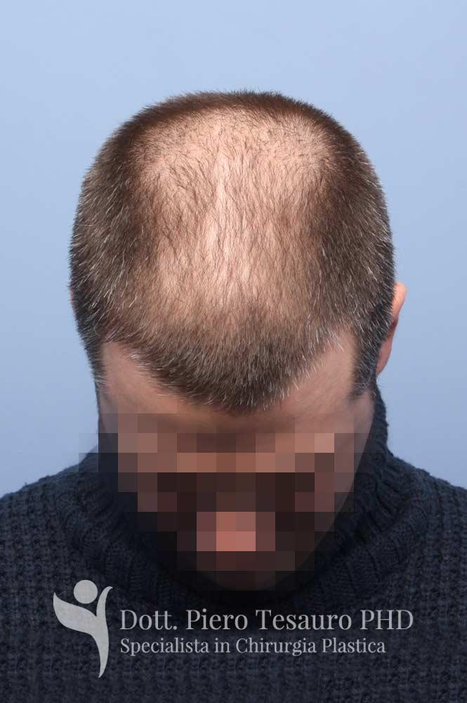 capelli terapia 4