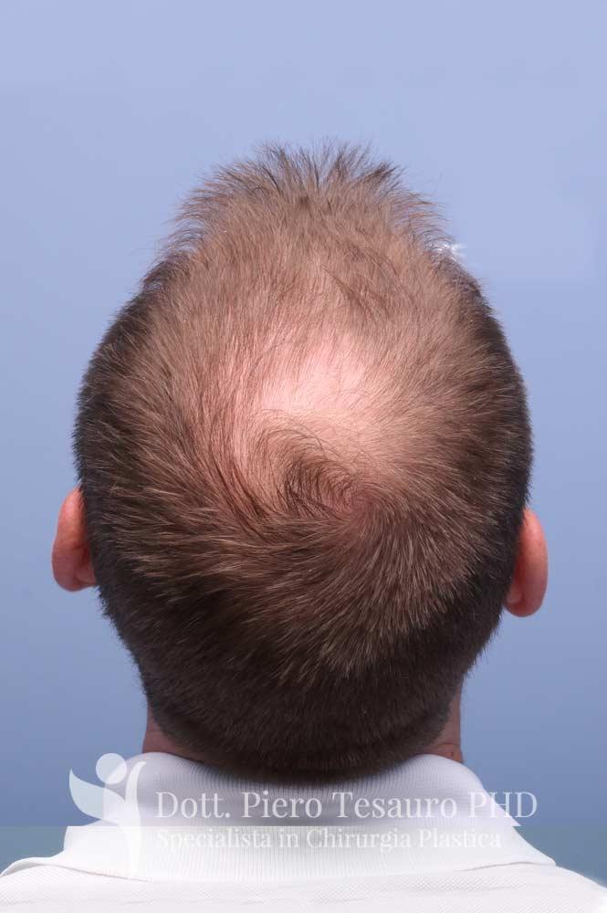 terapia capelli 1