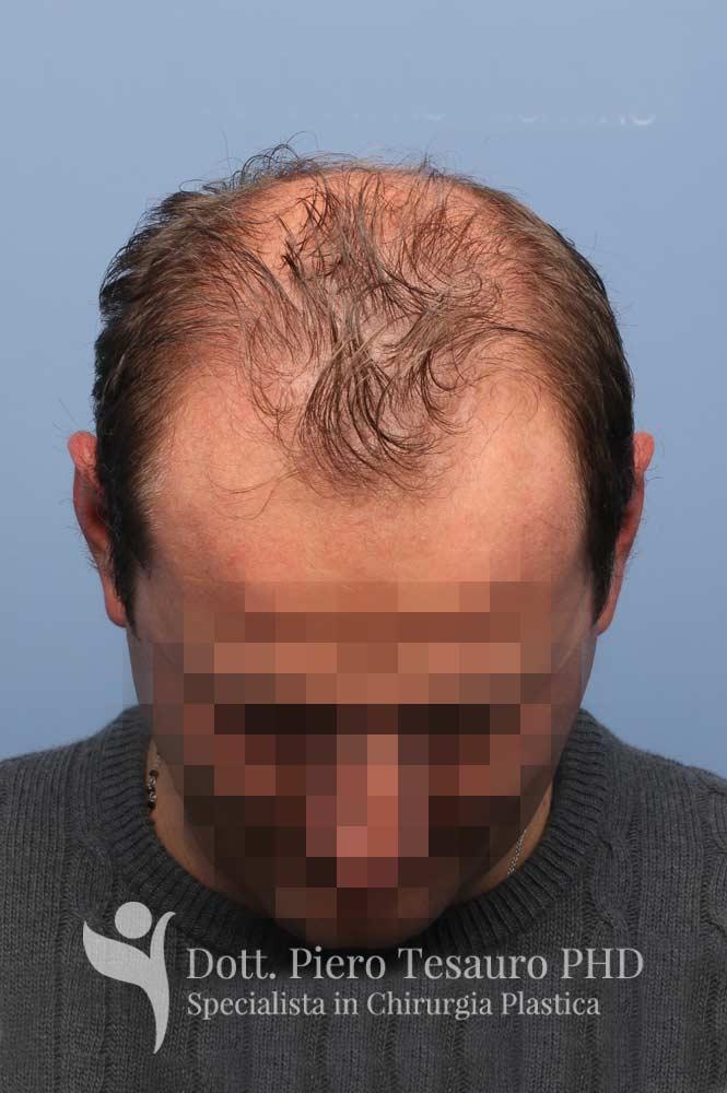 terapia capelli 2