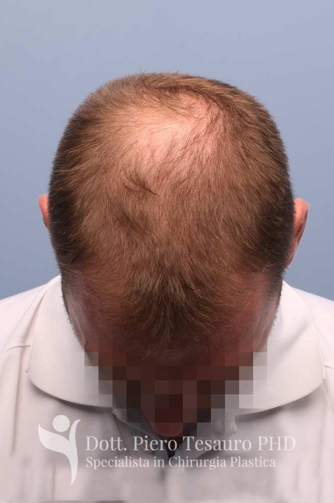 terapia capelli 3