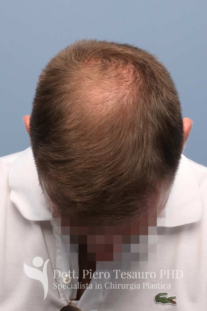 terapia capelli 4