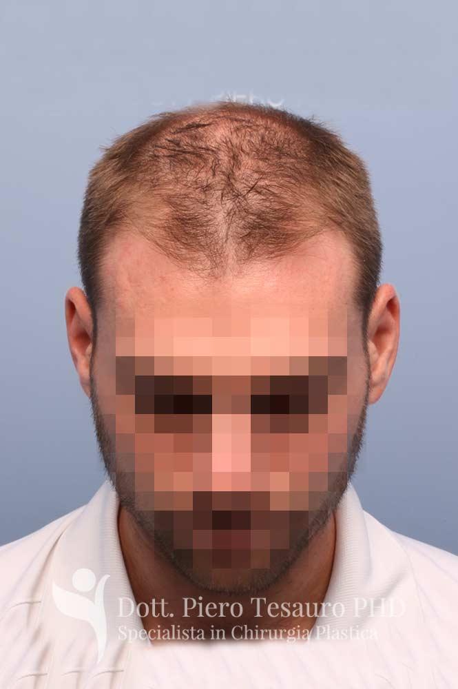 terapia capelli 5