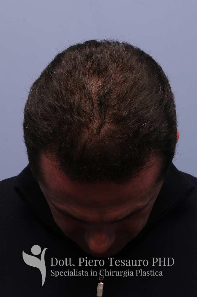 trapianto capelli prima dopo6