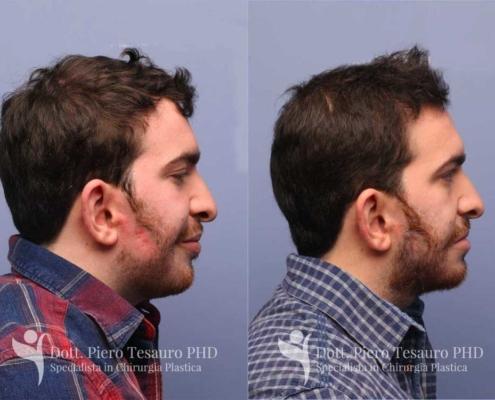 Autotrapianto barba pro barba