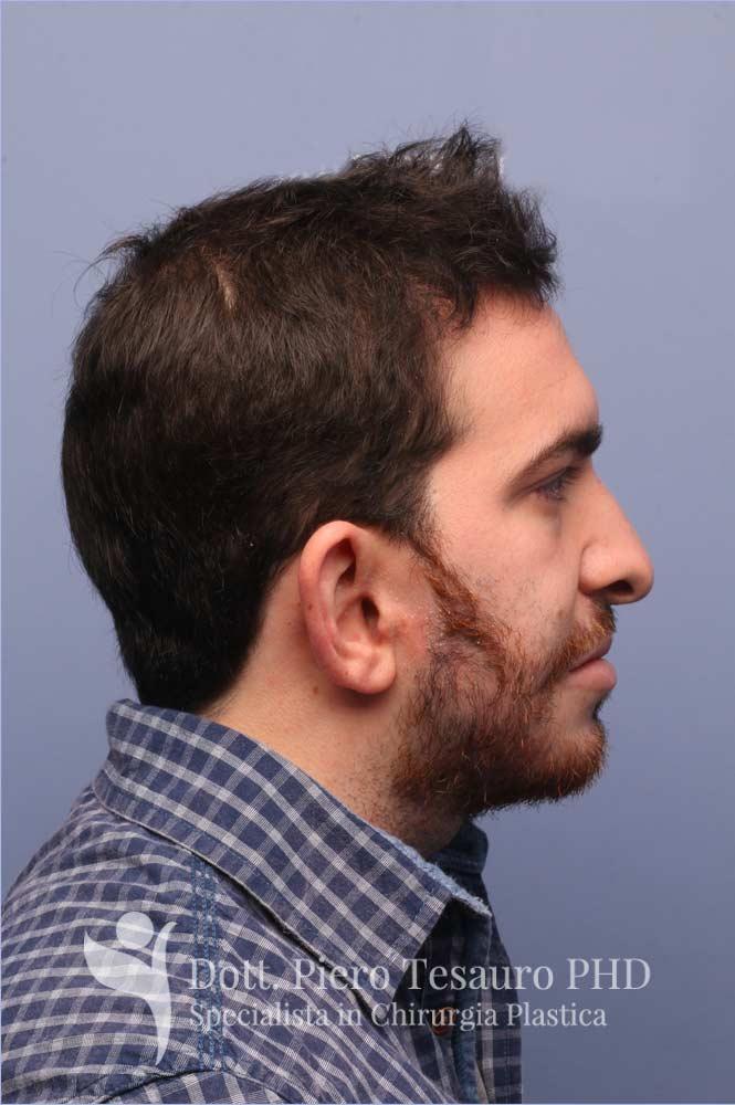 Autotrapianto barba pro barba1