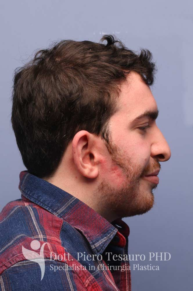 Autotrapianto barba pro barba2