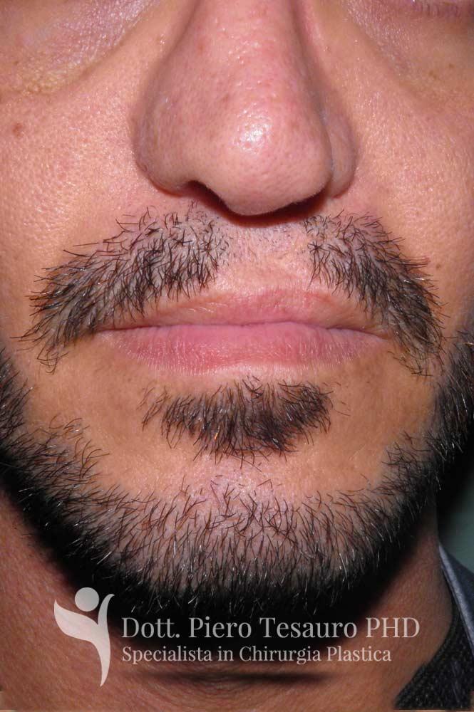 Trapianto ricostruttivo barba