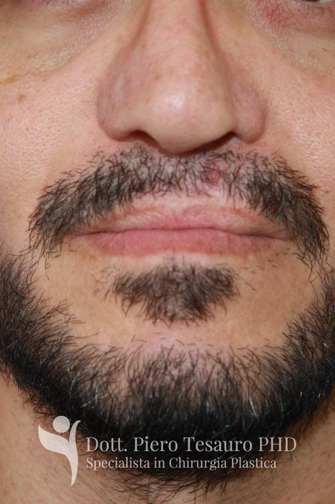 Trapianto ricostruttivo barba1