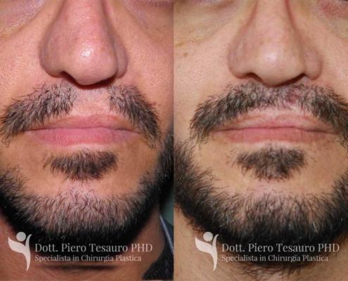 Trapianto ricostruttivo barba2
