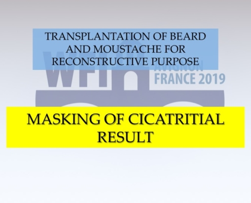 Diapositiva11 Trapianto barba e baffi