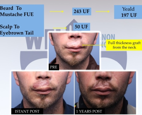 Diapositiva12 Trapianto barba e baffi