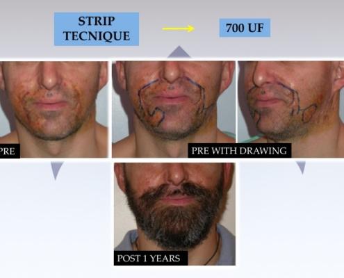 Trapianto barba e baffi