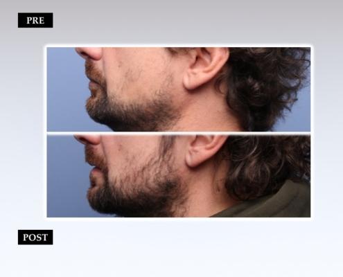 Diapositiva16 Trapianto barba e baffi