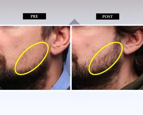 Diapositiva17 Trapianto barba e baffi