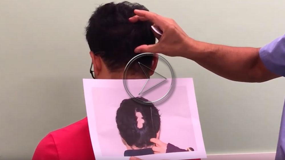 Video trapianto alopecia decubito